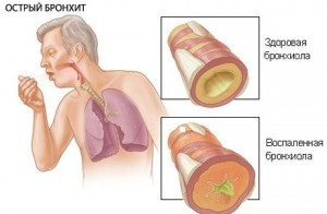 acute-bronchitits