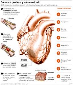 infarto (1)